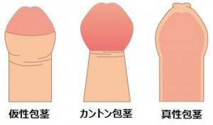 包茎 三種類