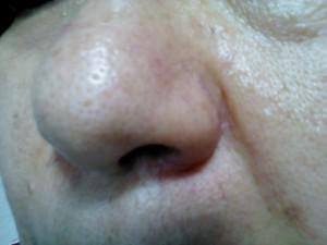 毛穴がブツブツ・イチゴ鼻